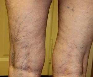 visszerek férfiaknál és terhesség visszér a lábakon változatosság