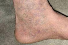 könnyű töltés a visszér ellen fájó lábak visszérgyógyszer