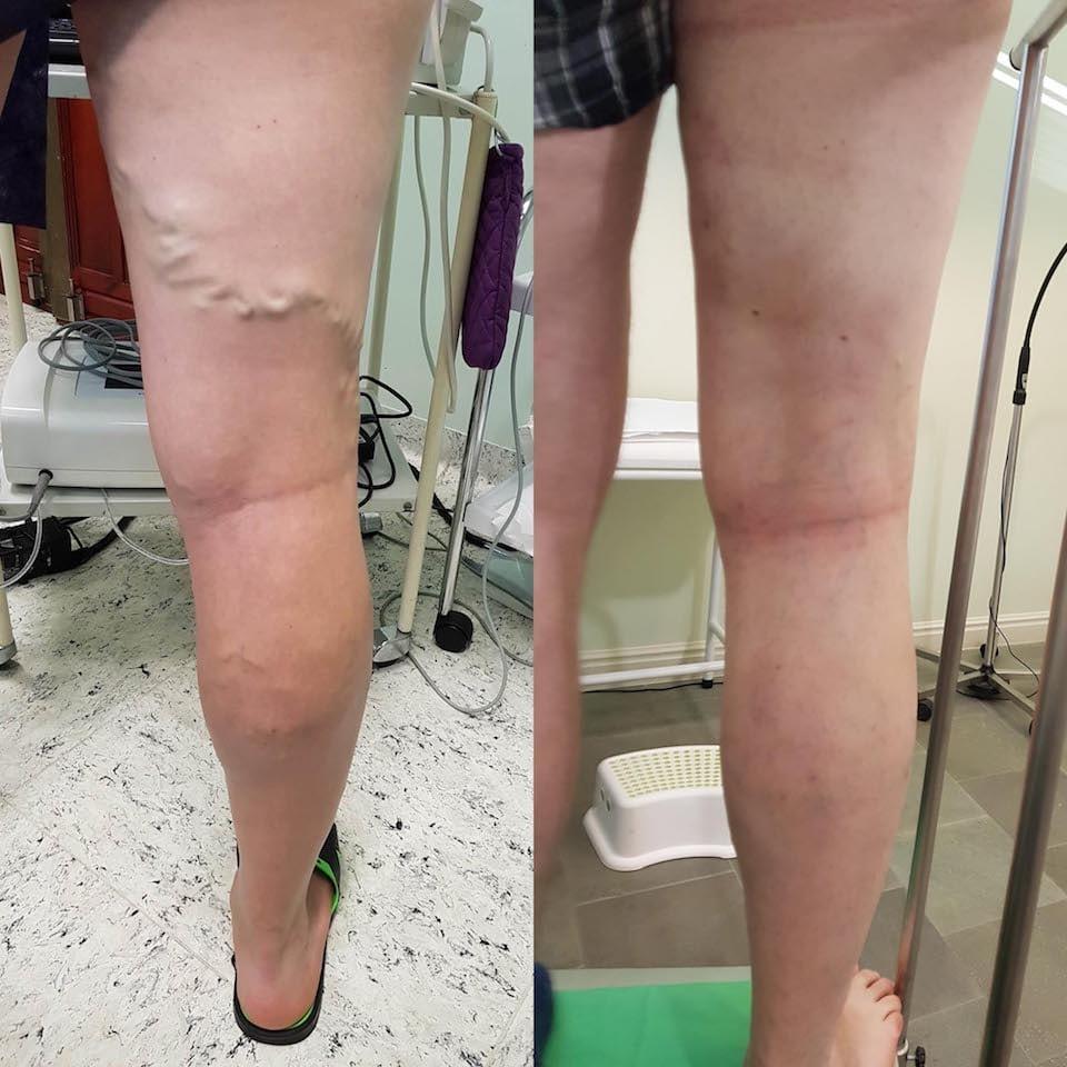 lábak a visszér előtt és után akut fájdalom kezelése visszerekkel