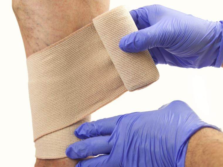 Lehetséges-e teljesen megszabadulni a visszérektől hirudoterápia visszeres séma esetén