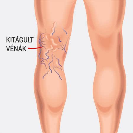 visszér a lábakon gesztenye kezelés kenőcs gél visszér vélemények