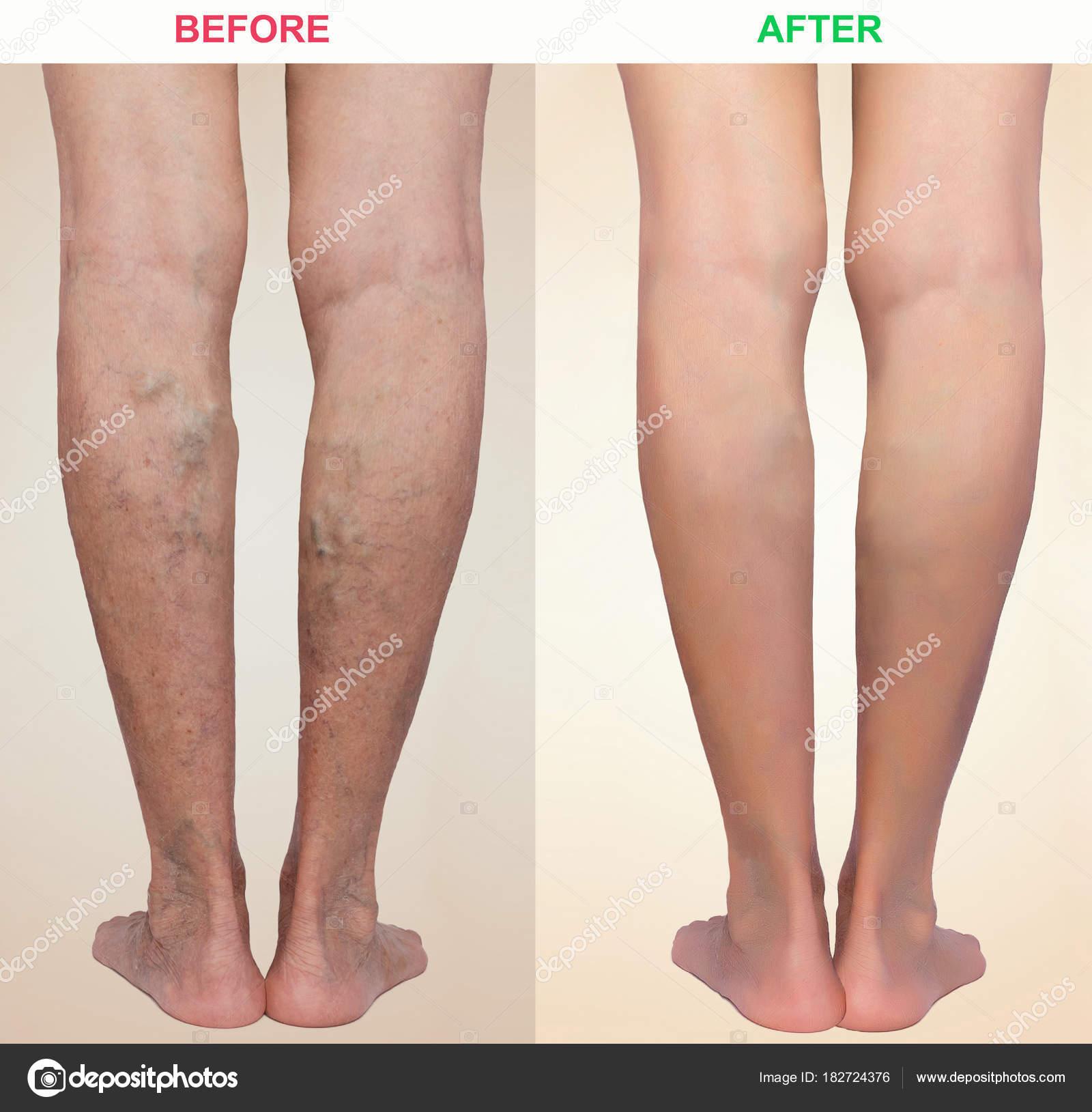 milta visszér kezelés bőr visszér fotó
