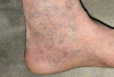 viszkető lábak visszér a varikózis erősen fáj az egyik lábával