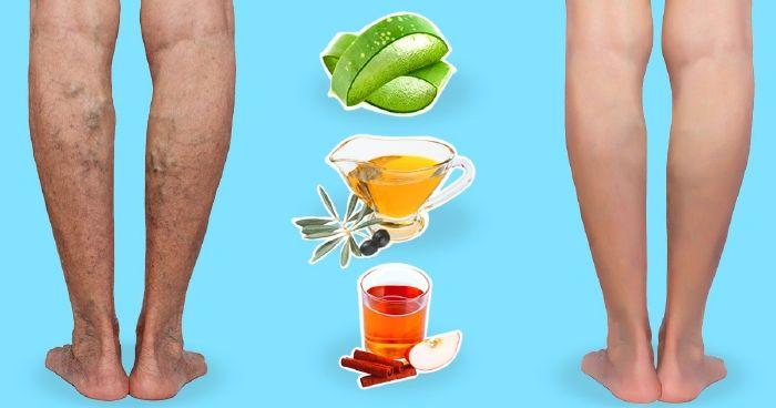 népi gyógymód a lábakon lévő visszerek kezelésére