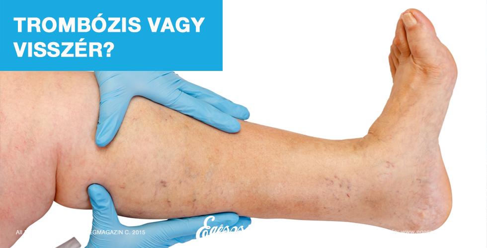 gyógyszerek visszér kezelésére férfiaknál visszeres ödéma a lábakon