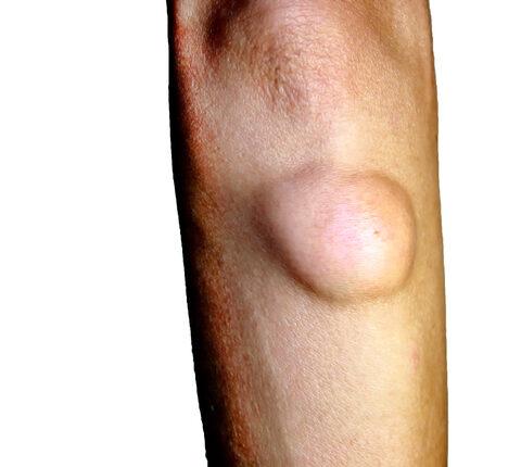varikózis a bokán műtét után