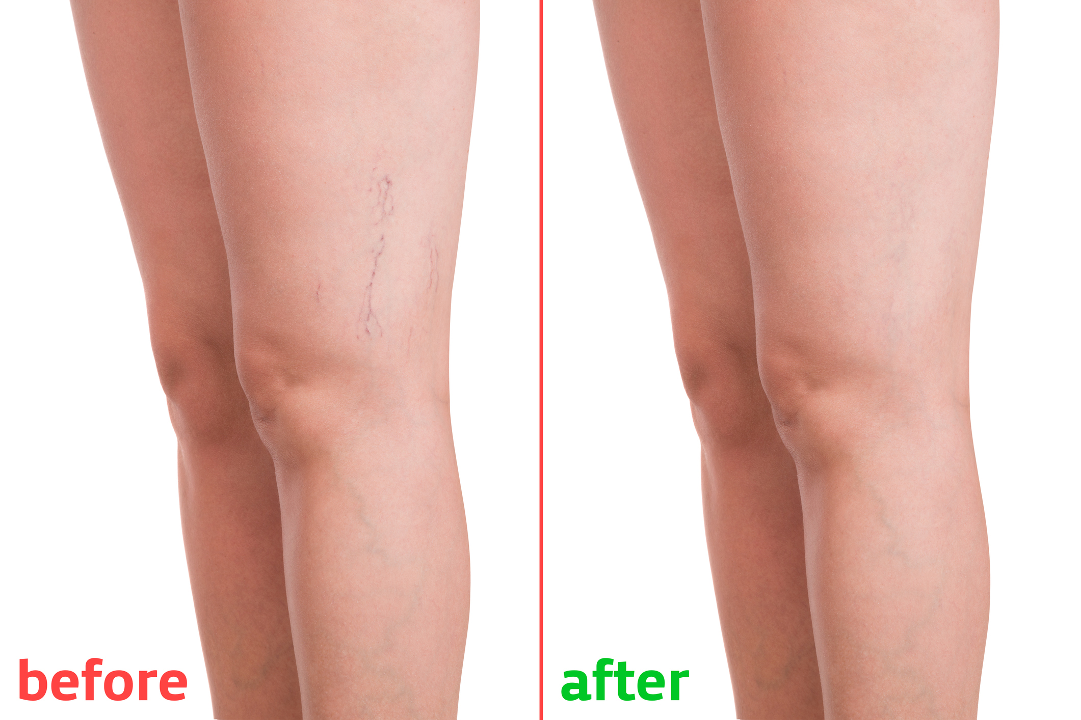 visszér a lábak a betegségről