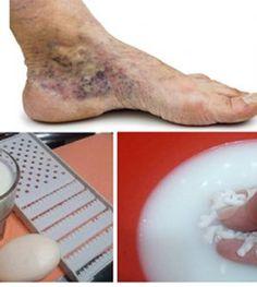 hogyan lehet meghúzni a visszér a lábakon