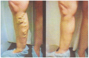 visszér műtét tesztek