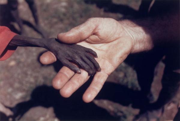 visszér és éhezés