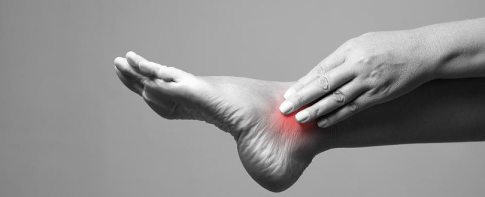 száraz bőr a varikózisos lábakkal visszér viszket a lábán
