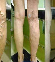 a visszér elkezdte a kezelést vajon viszket-e a visszér a lábakon