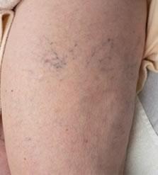 Lábvisszerek elzárása lézerrel - Betegtájékoztató | Elite Clinic