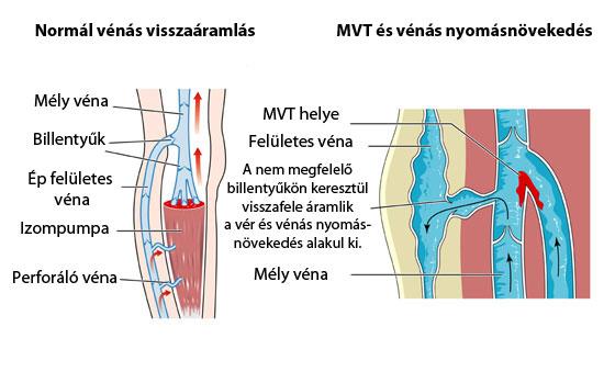 hogyan lehet elkerülni a visszér trombózisát)