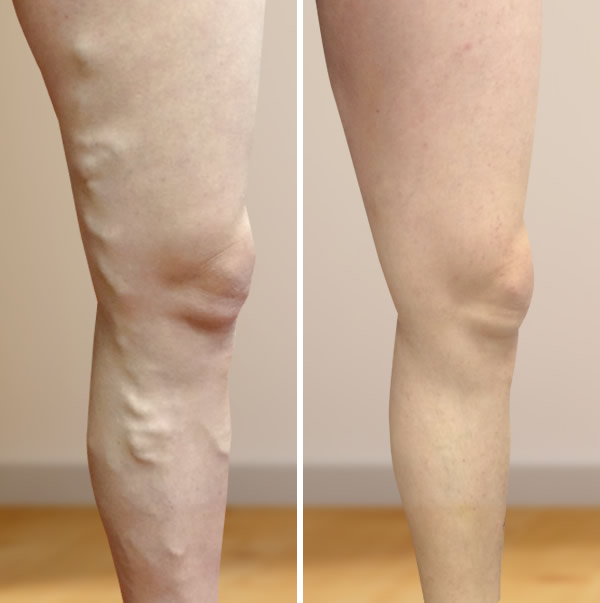 Visszérműtét, visszér műtét előtte és utána képek - Ars Medica Lézerklinika