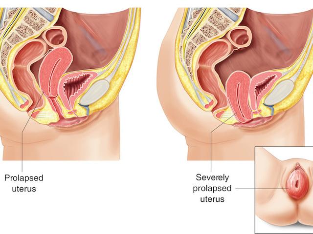 szülés a kismedencei szervek varikózisával)