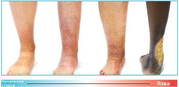 visszér és tromboflebitis kezelése hidrogén-peroxiddal)