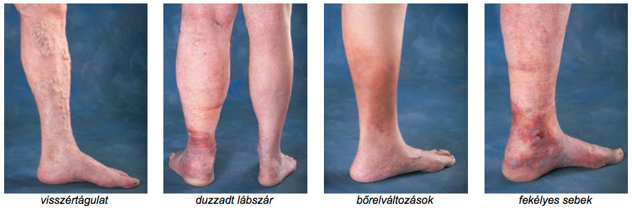 a láb visszér műtét költségei