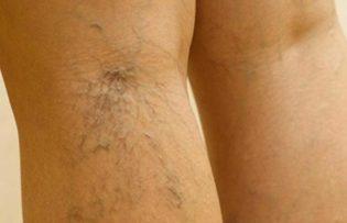 kapillárisok a lábakon visszér kezelés