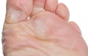 a lábak bőrének betegségei visszérrel)