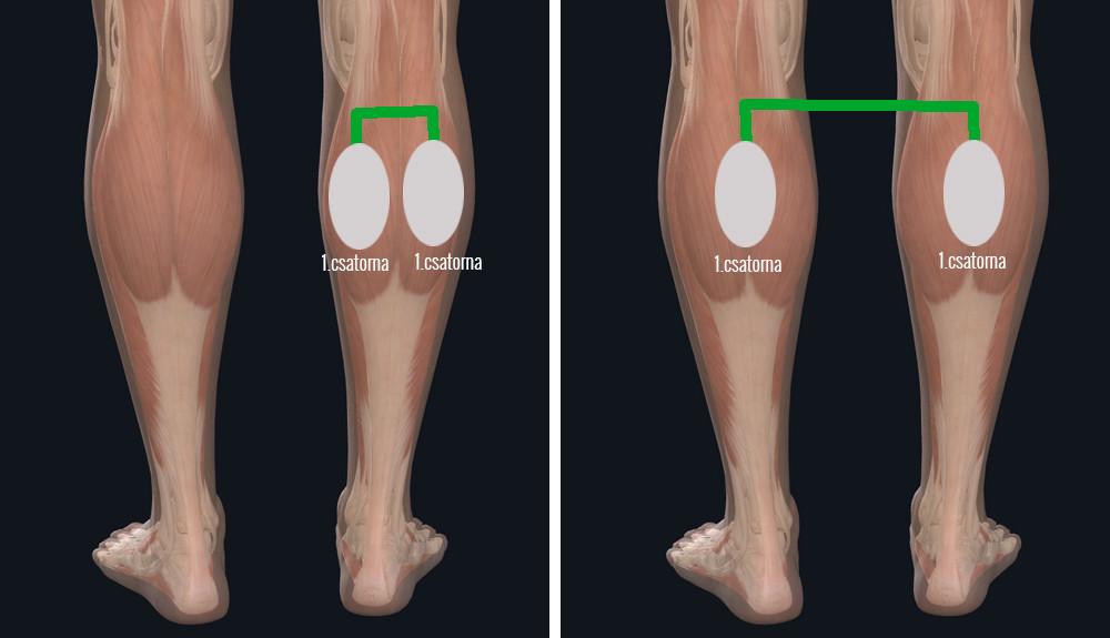 Hogyan lehet elkerülni a visszerek a lábakon, megelőzési módszerek - Fekélyek