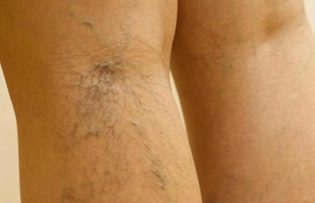 visszér kezelése a lábakon népi