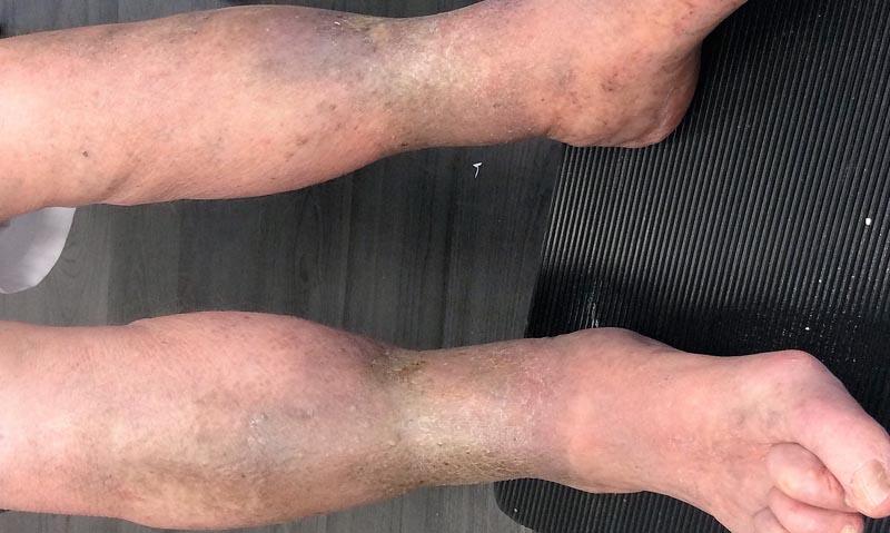 fénykép a sebekről a lábakon a visszerekből)