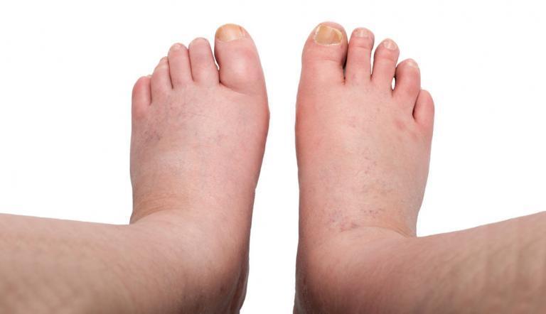 a lábujjak elzsibbadnak a visszér miatt