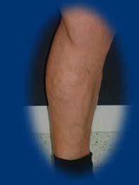 visszérműtét a lábakon fotó