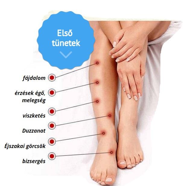 a varikózis oka és következménye a lábakon)