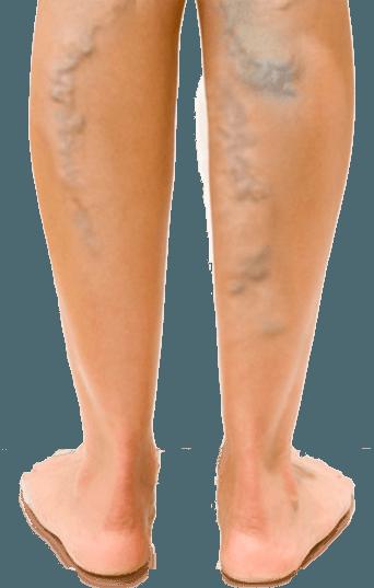 A krónikus kismedencei fájdalom szindróma