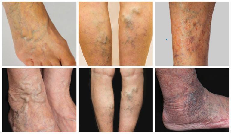 a lábak fájdalma és duzzanata visszeres