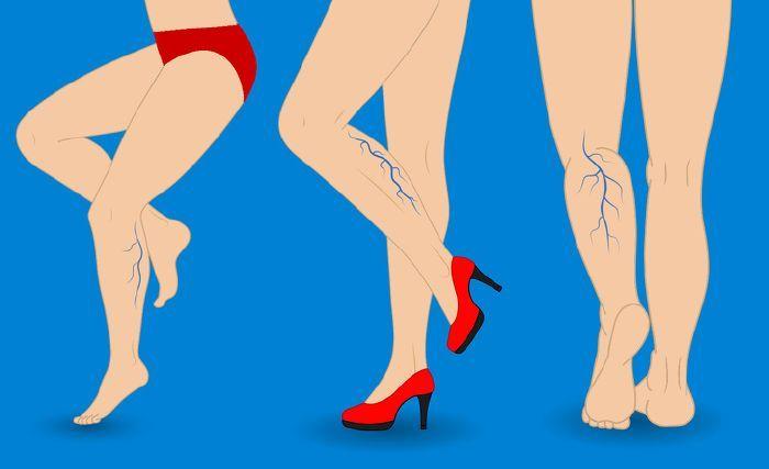 lapos láb és visszér kezelése)