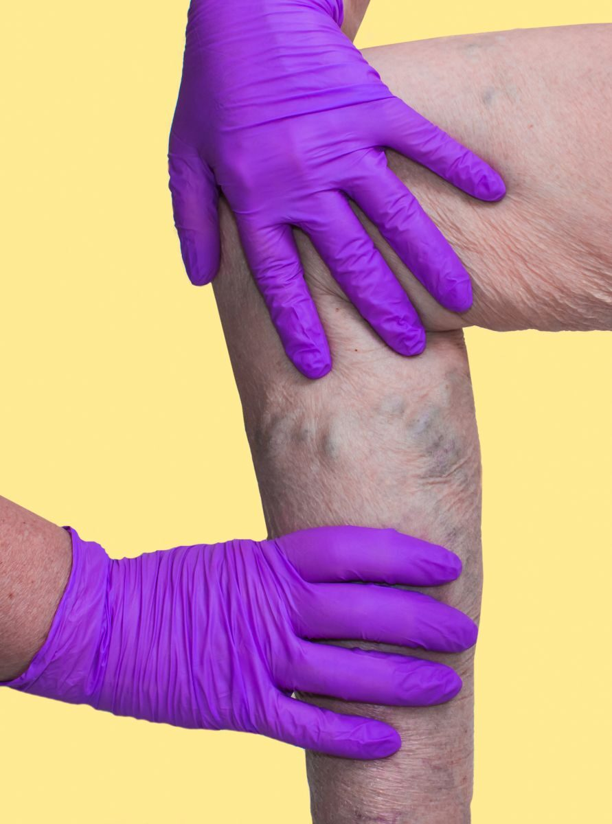 sertések visszér felületes visszér a lábakon