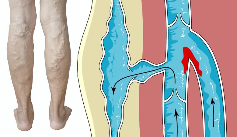 a visszér és a trombózis közötti különbség