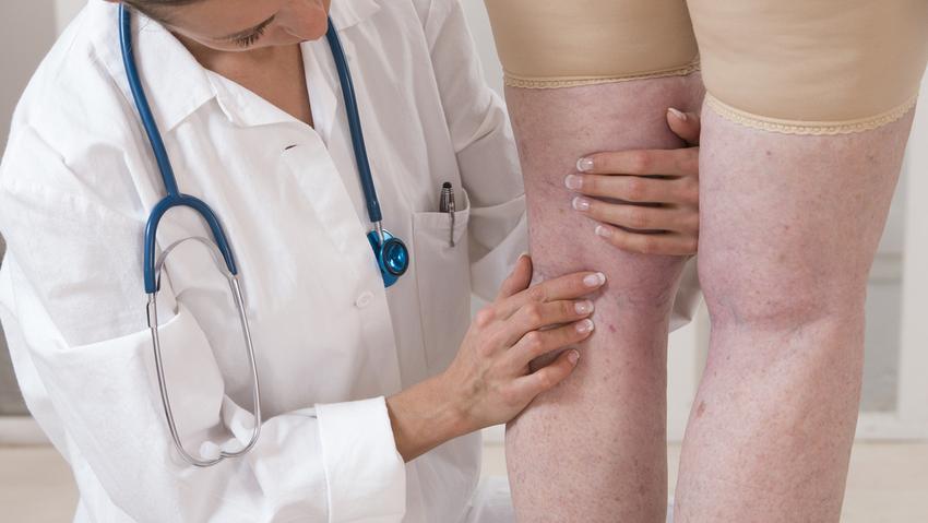 aki a visszereket kezeli a lábakon