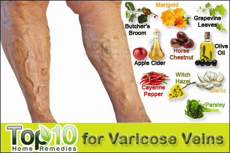 visszér visszér zúzódások a lábakon hogyan kell kezelni jó a visszér kezelésére