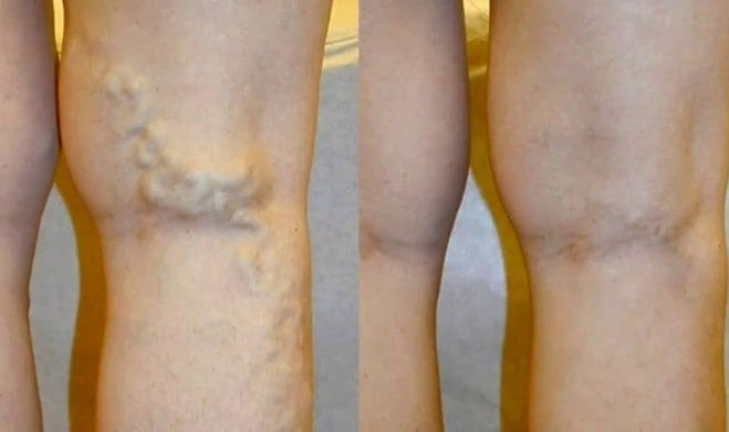 visszerek terhesség alatt a lábak testmozgása)