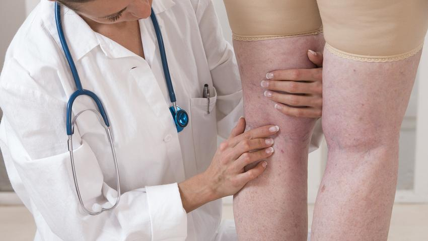 visszérgyulladás thrombophlebitis fekélykezelés fatetvek visszér kezelése