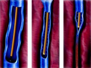 mennyi ideig tart a visszérműtét a lábakon