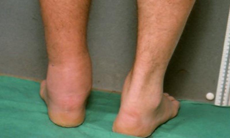 hogyan lehet bekötni a láb visszerét)