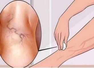 képek a visszér kezeléséről népi gyógymódokkal