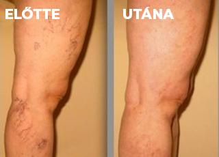 krém műtét után visszér a lábakon)