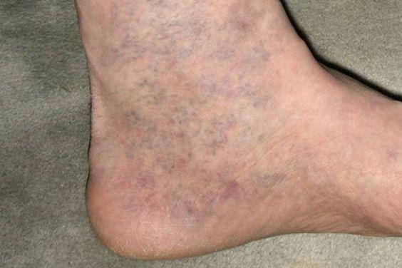 Pigmentáció kezelése a varikózisos lábakkal