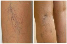 visszér a lábakon-kezelés népi gyógymódokkal