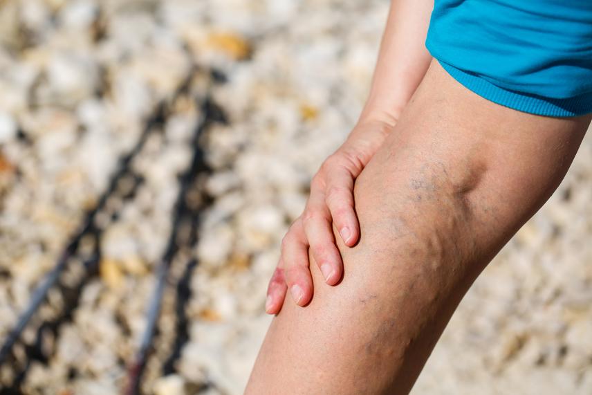 sebész és visszér lábfájdalom a bokán visszeres