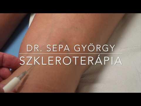 visszér és szkleroterápia)