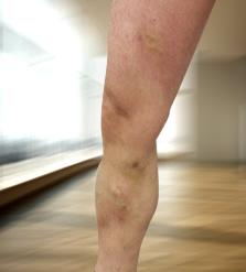 Viscerózis kezelésének módszere Detralex - felvételi és felülvizsgálati folyamat