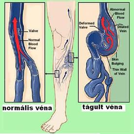 véna műtét az alsó végtagok visszeres megbetegedése esetén